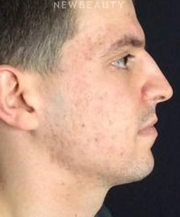 dr-kim-nichols-acne-treatment-b