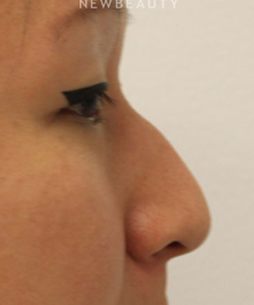 dr-kimberly-lee-non-surgical-rhinoplasty-b