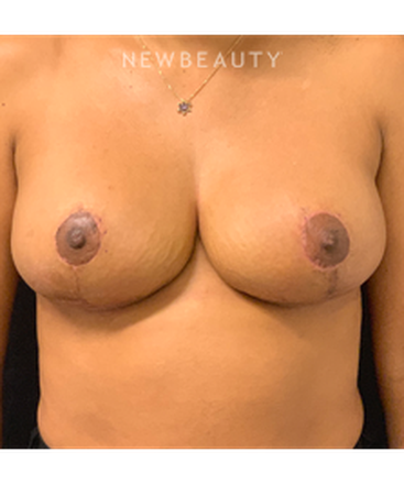 dr-craig-baldenhofer-breast-reduction-b
