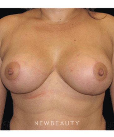 dr-sean-simon-breast-augmentation-breast-lift-b