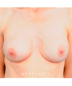 dr-brad-bengtson-breast-enhancement-with-revision-b