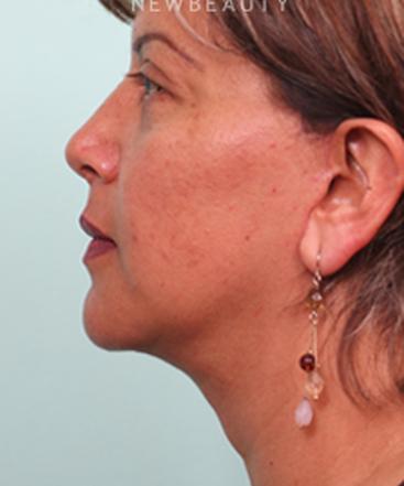 dr-juan-carlos-fuentes-facelift-necklift-b