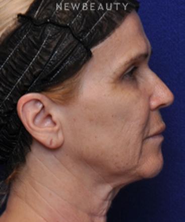 dr-alan-j-durkin-facelift-b