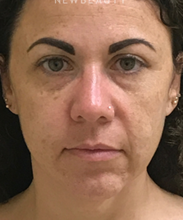 dr-beth-collins-facelift-with-fat-grafting-b