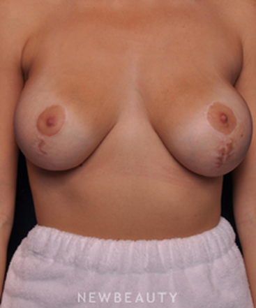 dr-alan-durkin-breast-augmentation-b