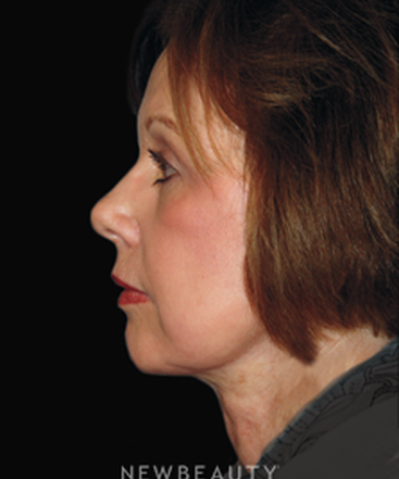 dr-brent-smith-lasers-eye-lift-mini-facelift-b