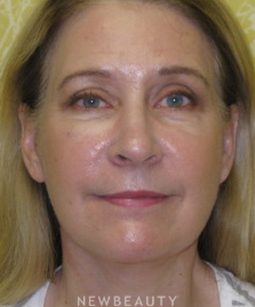 dr-beth-collins-facelift-b