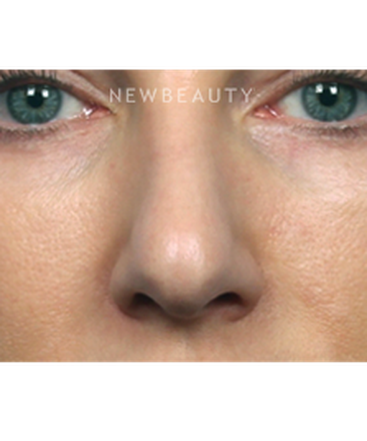 dr-kelly-bomer-nonsurgical-rhinoplasty-b