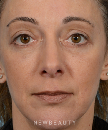 dr-jeffrey-b-wise-lower-blepharoplasty-b