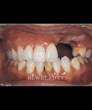 dr-neal-patel-crowns-dental-implants-smile-makeover-b