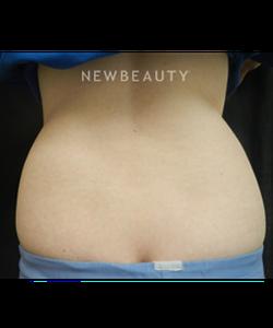 dr-heidi-waldorf-skin-tightening-fat-melters-b