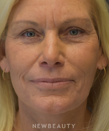 drs-lieberman-parikh-facelift-b