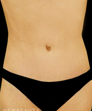 dr-kevin-tehrani-lateral-tension-abdominoplasty-b