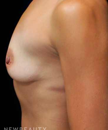dr-mokhtar-asaadi-breast-augmentation-b