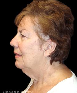 dr-mokhtar-asaadi-facelift-b