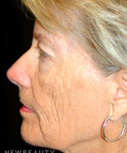 dr-mokhtar-asaadi-eyelid-lift-facelift-b