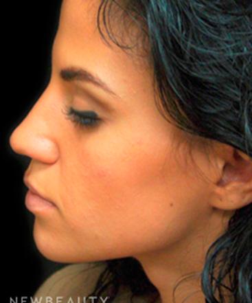 dr-mokhtar-asaadi-rhinoplasty-b