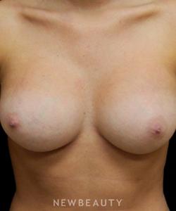 dr-mokhtar-asaadi-breast-enhancement-b
