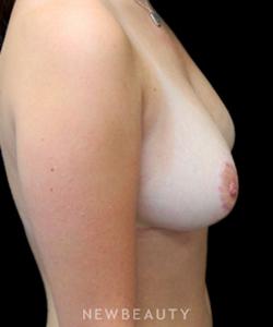 dr-mokhtar-asaadi-breast-reduction-b