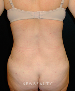 dr-mokhtar-asaadi-liposuction-tummy-tuck-b