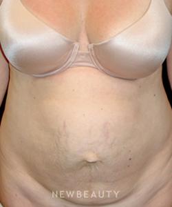 dr-mokhtar-asaadi-tummy-tuck-liposuction-b
