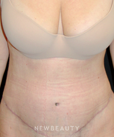 dr-mokhtar-asaadi-tummy-tuck-liposuction-b