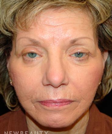 dr-mokhtar-asaadi-facelift-eyelid-lift-b