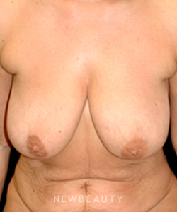 dr-mokhtar-asaadi-breast-reduction-liposuction-tummy-tuck-b