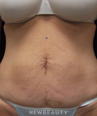 dr-mokhtar-asaadi-liposuction-tummy-tuck-b