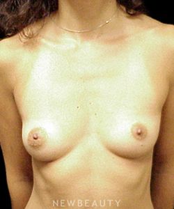 dr-mokhtar-asaadi-breast-implants-b