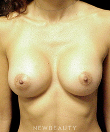 dr-mokhtar-asaadi-breast-implants-b