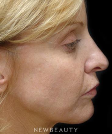 dr-mokhtar-asaadi-eyelid-lift-facelift-necklift-b