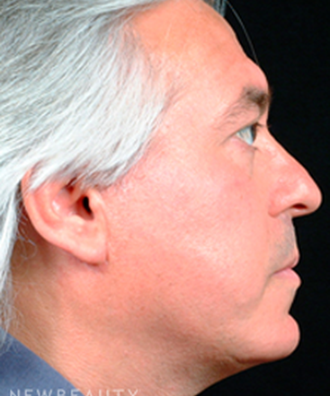 dr-steven-bloch-eyelid-lift-chin-augmentation-facelift-b