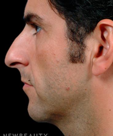 dr-steven-bloch-rhinoplasty-b