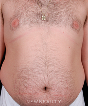 dr-steven-bloch-liposuction-tummy-tuck-b