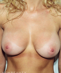 dr-david-rapaport-silicone-breast-implants-b