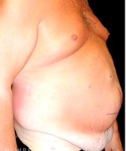 dr-mokhtar-asaadi-liposuction-male-plastic-surgery-b