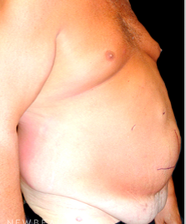 dr-mokhtar-asaadi-liposuction-male-plastic-surgery-b