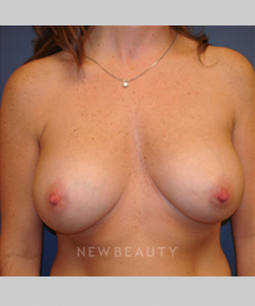 dr-sarah-e-mcmillan-silicone-breast-implants-b