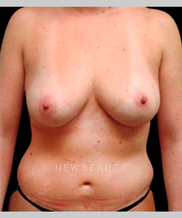dr-sarah-mcmillan-silicone-breast-implants-b