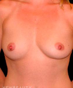 dr-tiffany-mccormack-breast-augmentation-b
