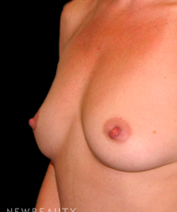 dr-tiffany-mccormack-breast-augmentation-b