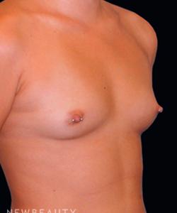 dr-tiffany-mccormack-silicone-breast-implants-b