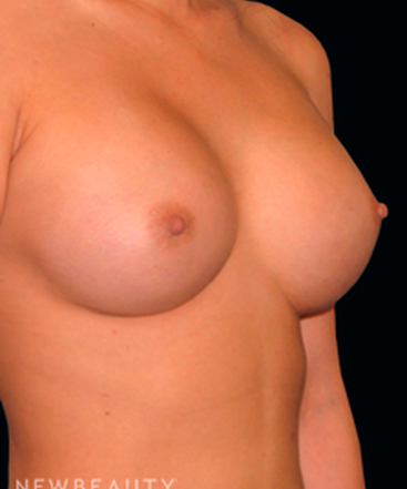 dr-tiffany-mccormack-silicone-breast-implants-b