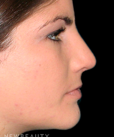 dr-tiffany-mccormack-rhinoplasty-b