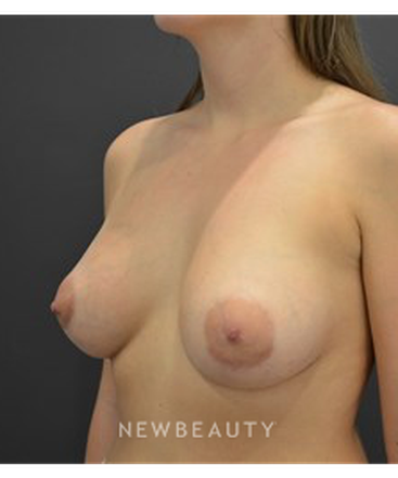 dr-b-aviva-preminger-breast-implants-b