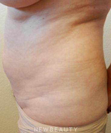 dr-jennifer-e-boll-liposuction-b
