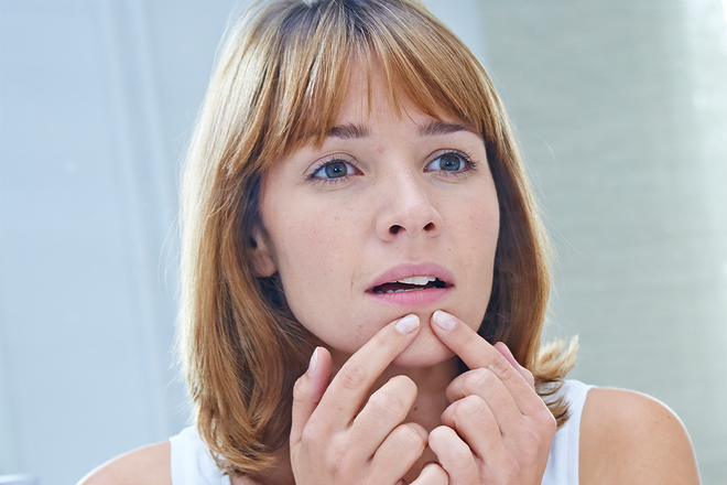 Pimple Popping Story Staph Infection - NewBeauty