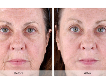 The At-Home Tool That Uses NASA Technology Research to Eliminate Wrinkles