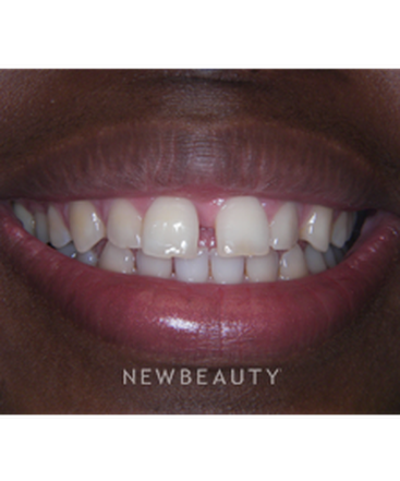 dr-jan-linhart-veneers-teeth-whitening-b